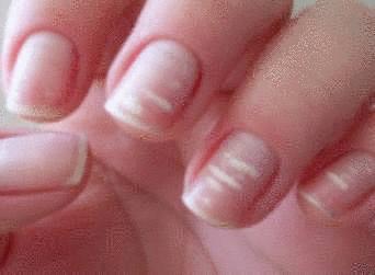 comment appliquer l huile de ricin sur les ongles